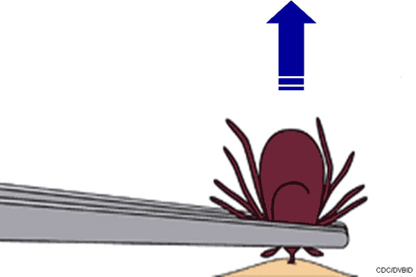 //www.gameandfishmag.com/files/ticked-off-what-you-need-to-know-about-ticks-and-lyme-disease/tick_remove_5.jpg