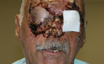 Jackson Memorial released this image of Poppo last week only two and a half weeks after the attack.