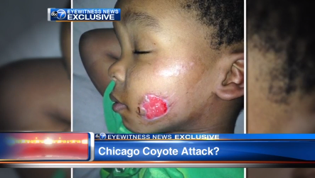 Read & React: Coyote Attacks Chicago Boy in City Park